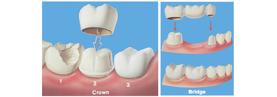 Dental Bridges and Crown Facts 2021